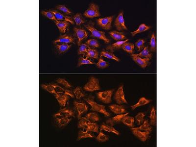 Anti-GNB1 antibody