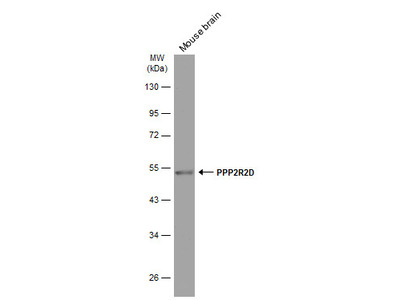 Anti-PPP2R2D antibody [GT577]