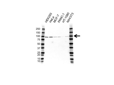 PROTEIN KINASE D2 ANTIBODY WITH CONTROL LYSATE