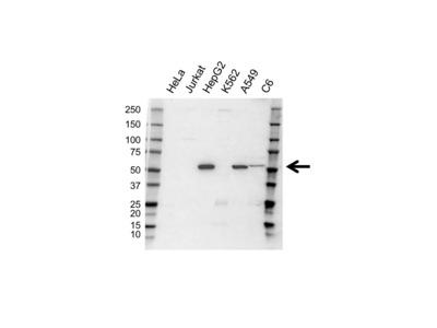RABBIT ANTI CYTOCHROME P450 AROMATASE