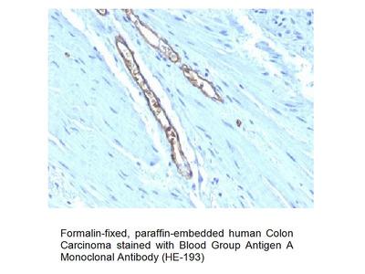 Anti-Blood Group Antigen A Antibody (CD173) (HE-193)