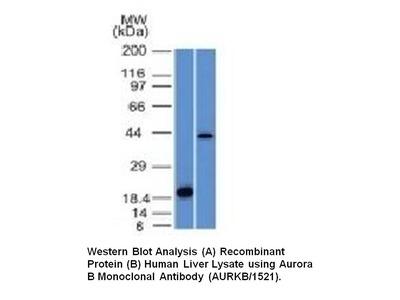 Anti-Aurora B Antibody (AURKB/1521)