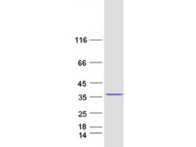 CXorf56 (NM_022101) Human Mass Spec Standard