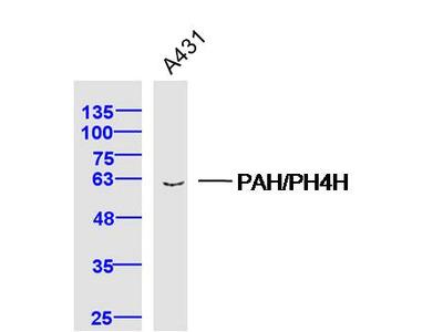 PAH/PH4H Polyclonal Antibody