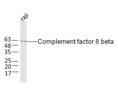 Complement factor 8 beta Polyclonal Antibody