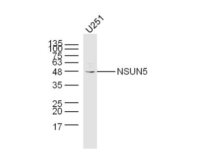 NSUN5 Antibody