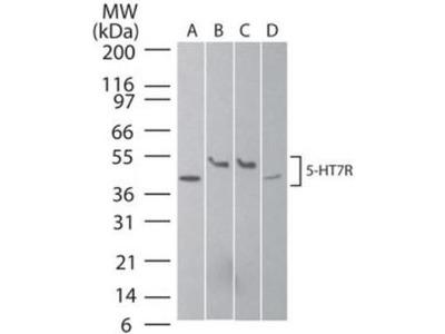 Anti-5-HT7 receptor antibody