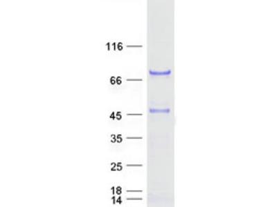 SCHIP1 (NM_014575) Human Mass Spec Standard