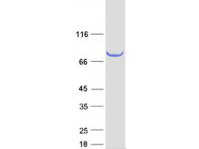 SCEL (NM_003843) Human Mass Spec Standard