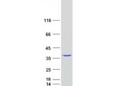 U1A (SNRPA) (NM_004596) Human Mass Spec Standard