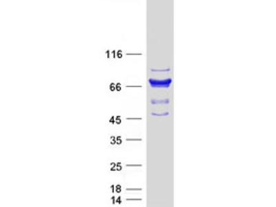 SAMHD1 (NM_015474) Human Mass Spec Standard