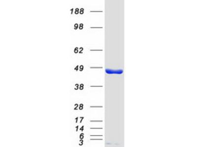SSB (NM_003142) Human Mass Spec Standard