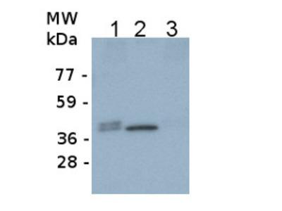 Anti- FBA ; Fructose-bisphosphate aldolase 1 (chloroplastic)