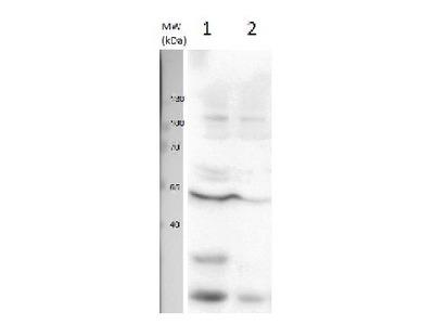 Anti- U1 snRNP protein A ; U1 small nuclear ribonucleoprotein A