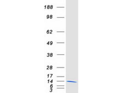 S100 beta (S100B) (NM_006272) Human Mass Spec Standard