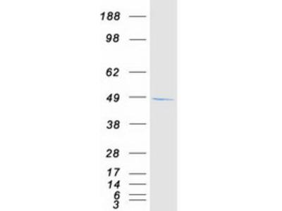 SDCCAG3 (NM_006643) Human Mass Spec Standard