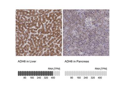 Anti-ADH6 Antibody