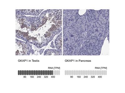Anti-GKAP1 Antibody
