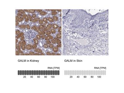 Anti-GALM Antibody