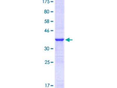 YWHAZ / 14-3-3 Zeta Protein