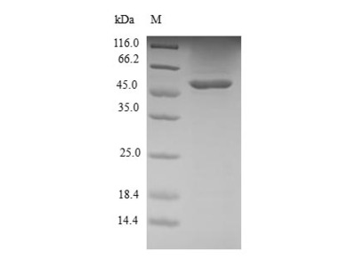 S100A12 Protein