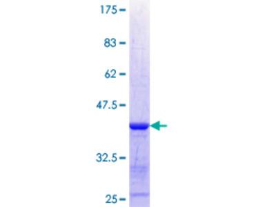 XYLB Protein