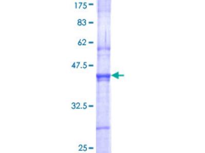 SENP3 Protein