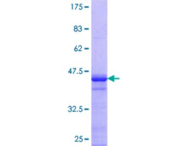 AHNAK2 Protein