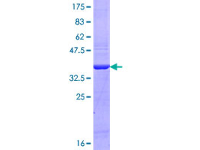 MYO15A Protein