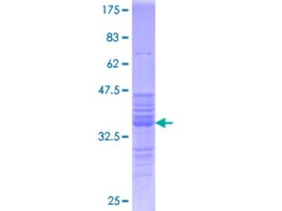 FOS / c-FOS Protein