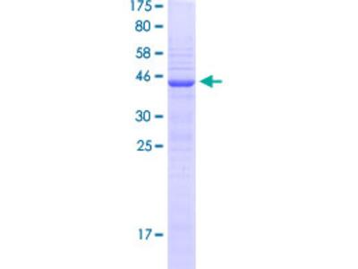 NHLH2 / HEN2 Protein