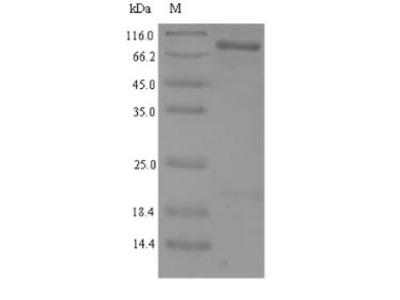 SIRT1 / Sirtuin 1 Protein