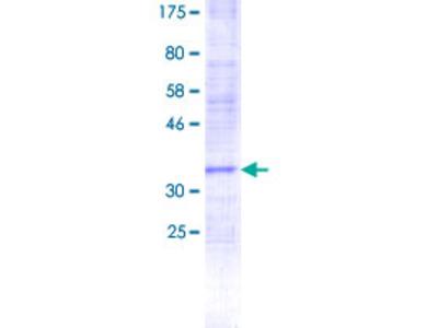 PIGF Protein