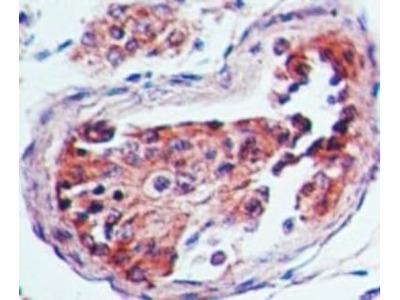 Anti-5-HT3A receptor antibody