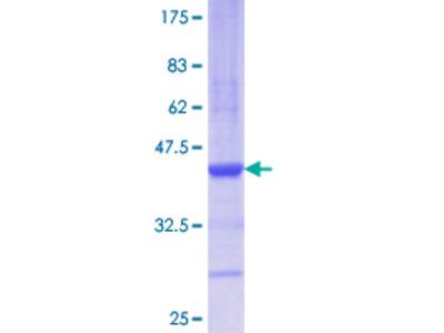 AGR2 Protein