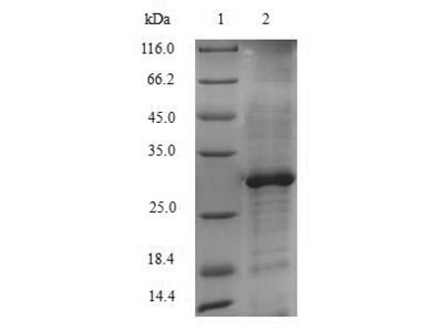 CYP51A1 / CYP51 Protein