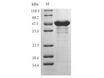 S100A3 / S100E Protein