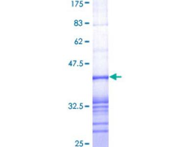 AKAP9 / YOTIAO Protein