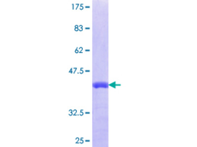 NUP35 / NUP53 Protein