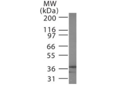 Anti-EB3 antibody