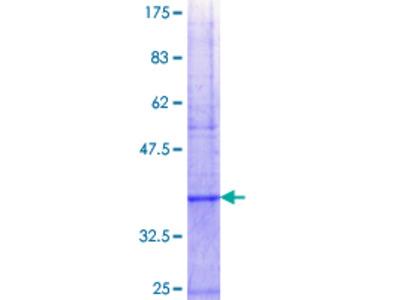 MSRA Protein