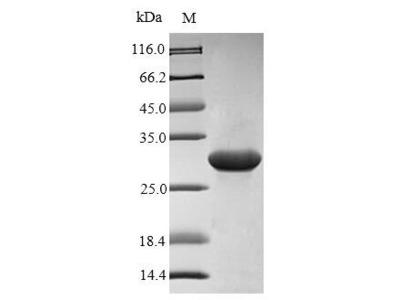 AIMP1 / EMAP II Protein