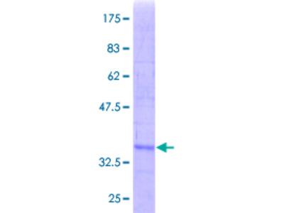 SRM / Spermidine Synthase Protein