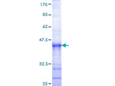 SENP6 Protein