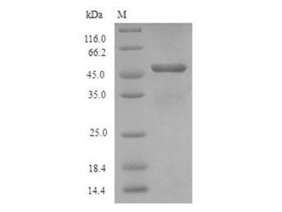 AQP1 / Aquaporin 1 Protein