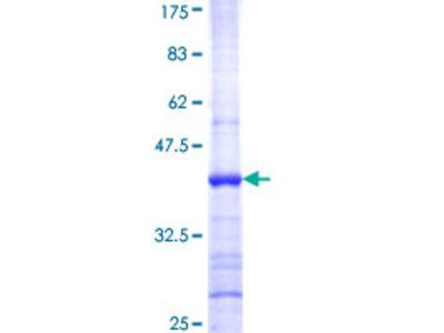 ATXN10 / SCA10 Protein