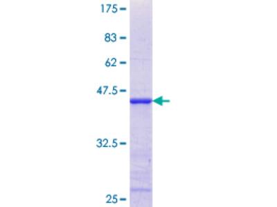 AKAP7 Protein