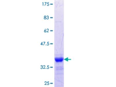 MTMR1 Protein