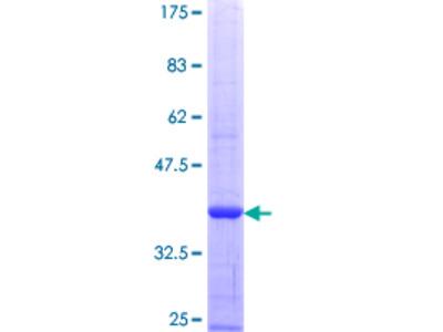 SLC4A1 / Band 3 / AE1 Protein