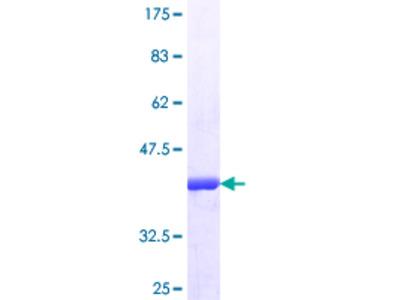 SUDS3 Protein